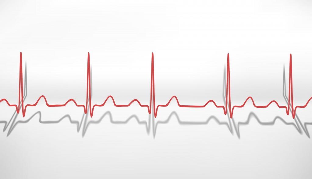 Heartbeat ECG. Volumetric concept. Vector