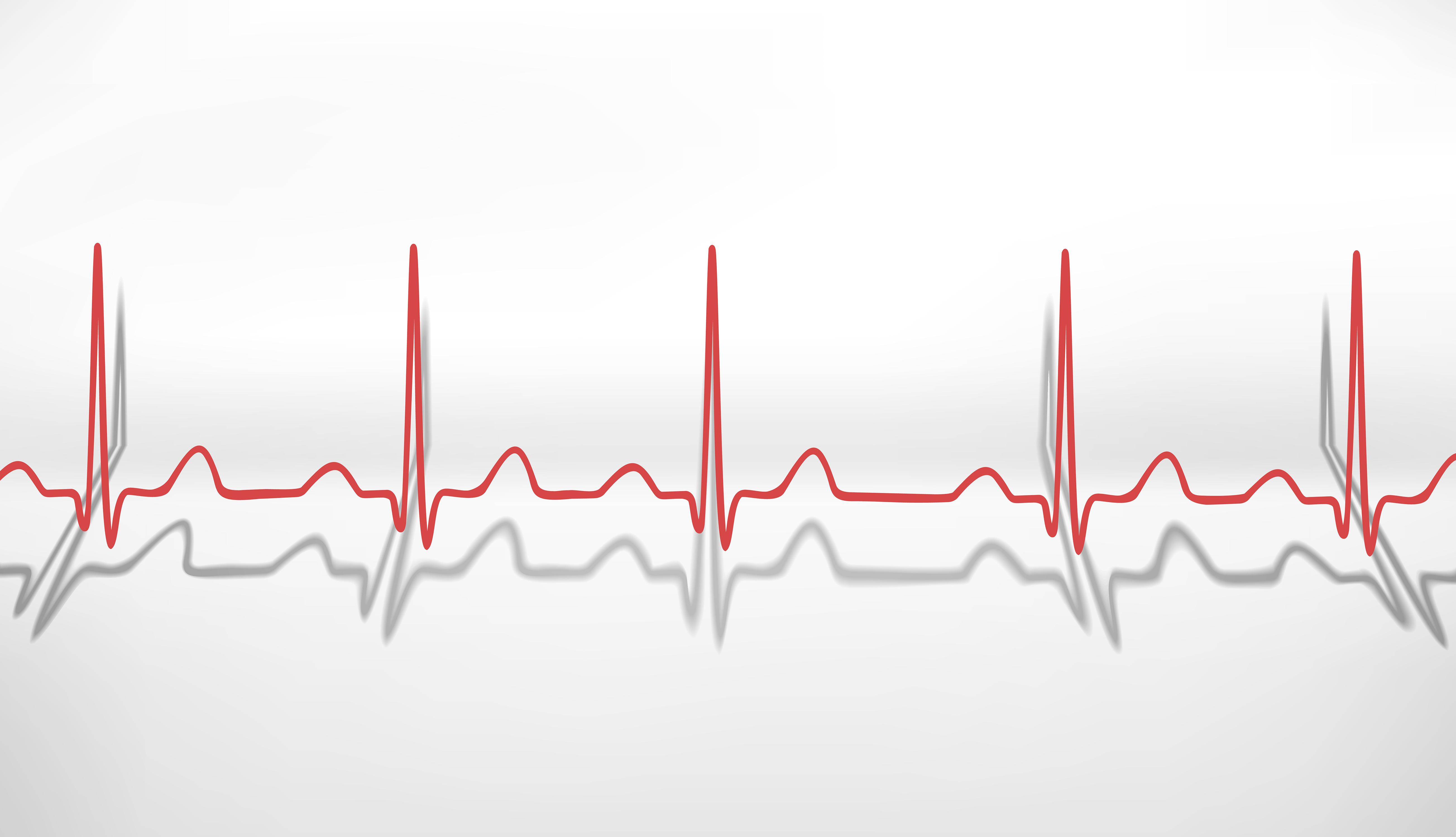 beat medical line - photo #29